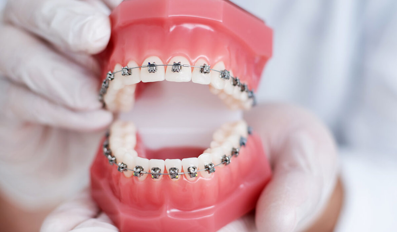 traditional metal braces